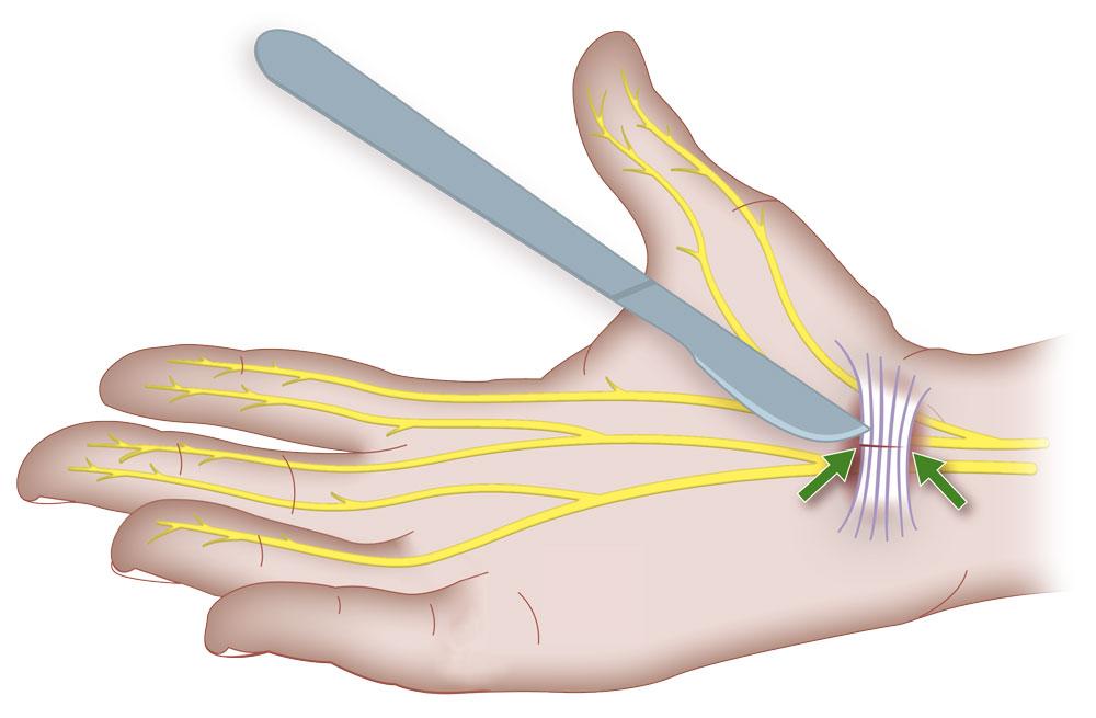 karpaltunnerl-syndrom-operation